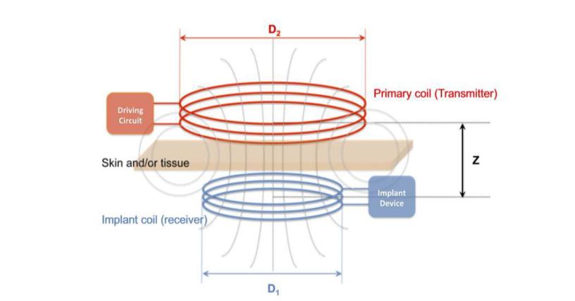 مدلسازي جذب حرارت بافتی و سیگنال دریافتی در سناریوي انتقال توان بیسیم از یک سیم پیچ بیرونی به سیم پیچ مستقر در درون بدن